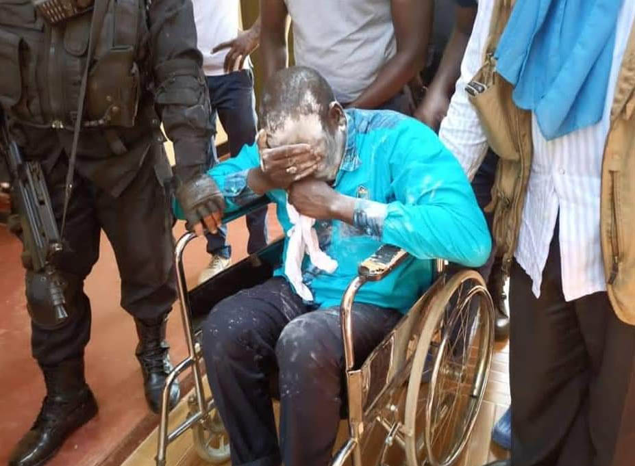 Baby Powder doesn't work: Amuriat pepper sprayed as he attempts to enter  Tororo for campaigns, hospitalized - Nile Post